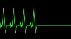 heartbeat gone flat